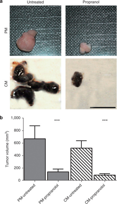 Adrenergic receptor antagonist propranolol sigma