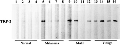 Anti-Tyrosinase-Related Protein-2 Immune Response in