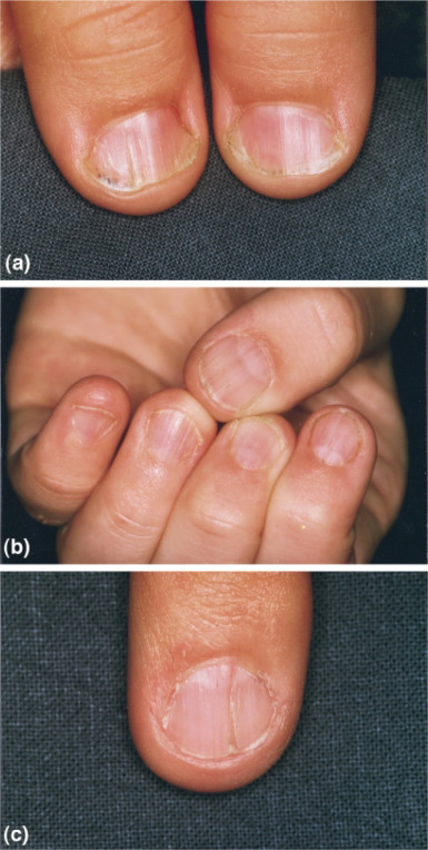 All Fingernails Of The Left Hand Show Thinning And Longitudinal Streaks Some Lunulae Are Poorly Developed