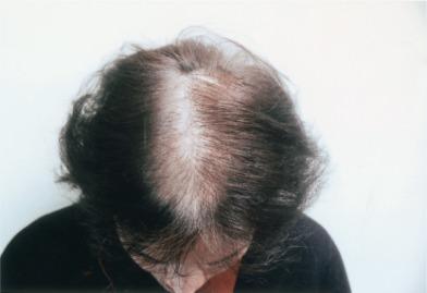 Androgenetic Alopecia In Women Sciencedirect