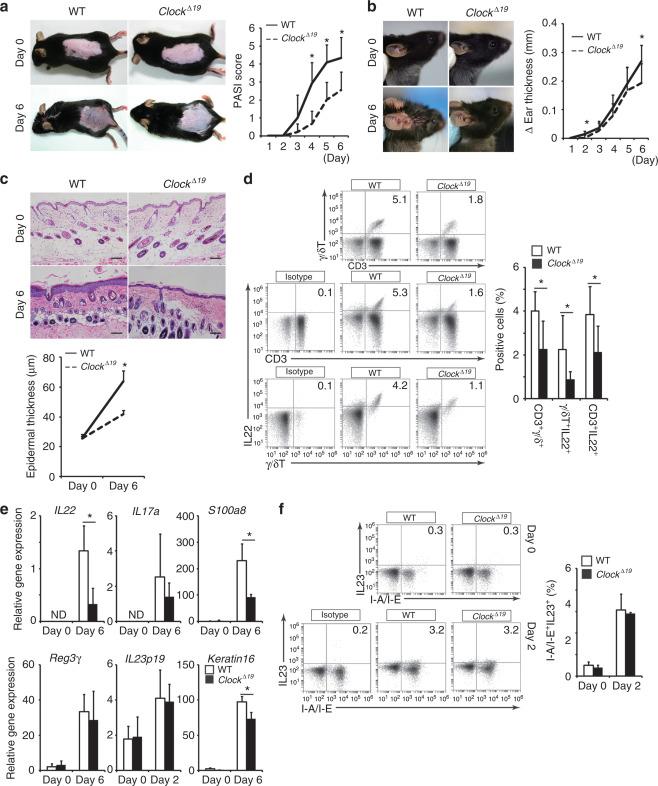 Circadian Gene Clock Regulates Psoriasis-Like Skin Inflammation in