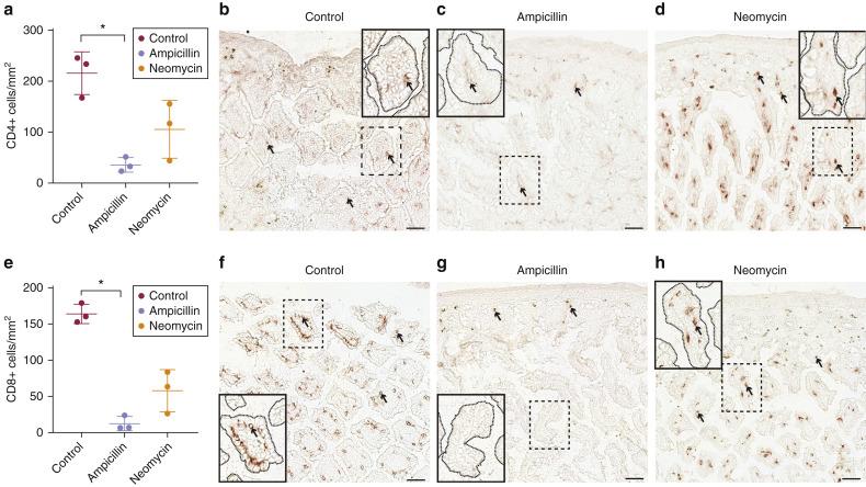 Antibiotics drive microbial imbalance and vitiligo
