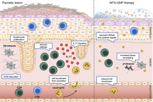 plaquenil maculopathy dose