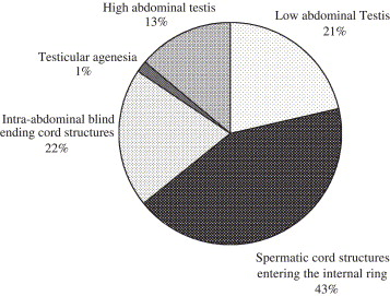 agenesia testicular uni o bilateral