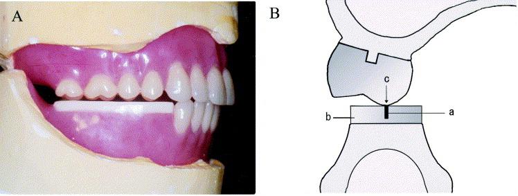 Twenty Degree Porcelain Teeth Used In Maxillary Posterior And Flat Planes Acrylic Resin Rims Were Mandibular Region
