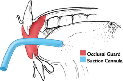 An Occlusal Guard For Preventing And Treating Self Inflicted Tongue
