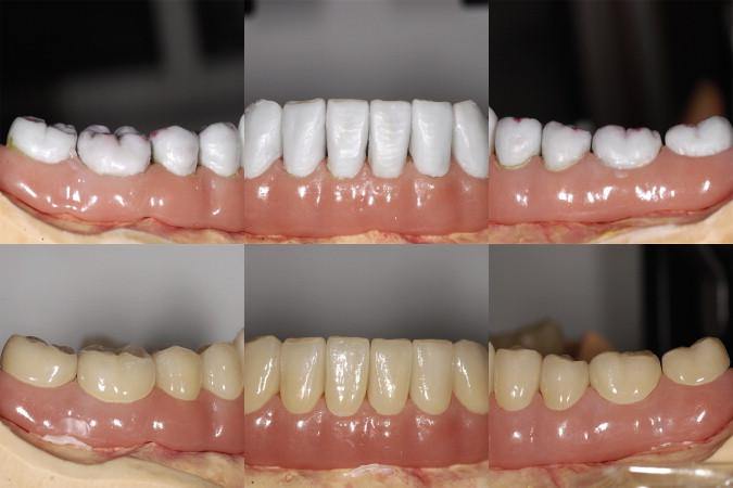 The rehabilitation of an edentulous mandible with a CAD/CAM