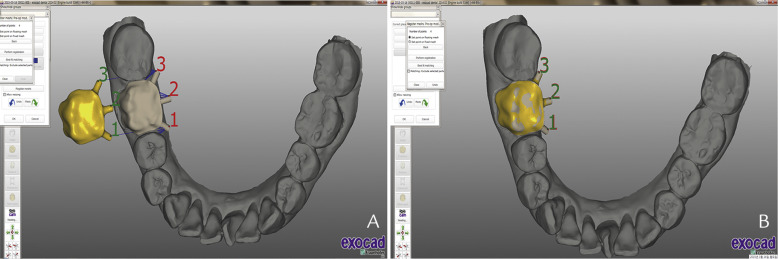Digital approach to a ceramic-pressed-to-metal restoration