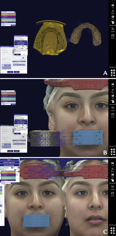 Digital workflow for an esthetic rehabilitation using a facial and