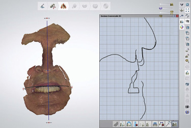 Integrating intraoral, perioral, and facial scans into the design of
