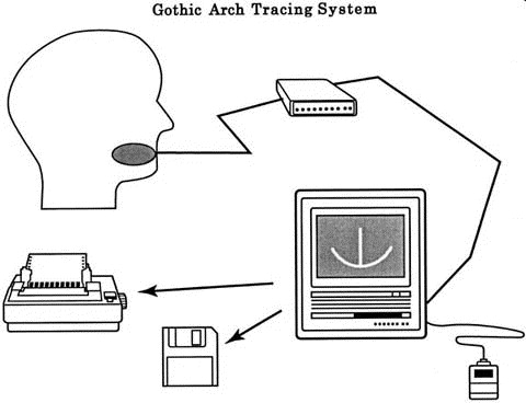 Image Of Gothic Arch Tracing System