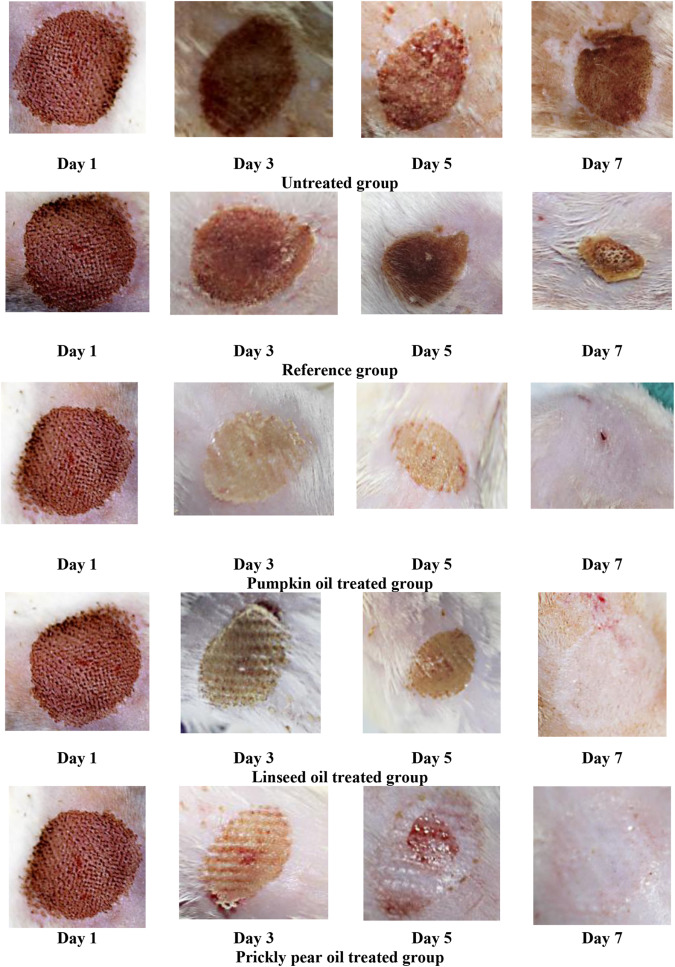 The Effect Of Natural Extracts On Laser Burn Wound Healing