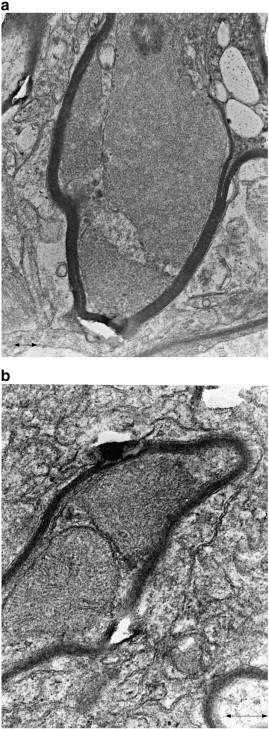 Adult-onset leukodystrophy with axonal spheroids - ScienceDirect
