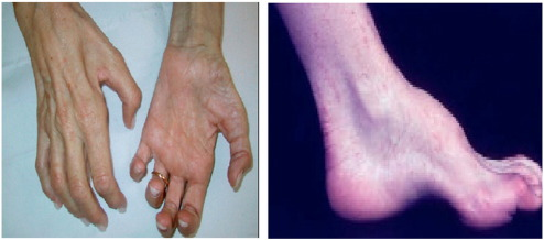 Molecular and clinical features of inherited neuropathies due to ...