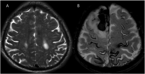 Clinical features of high-degree centrum semiovale-perivascular ...