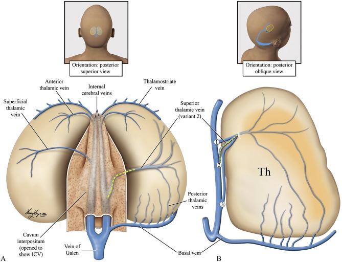 MRI venous architecture of the thalamus - ScienceDirect