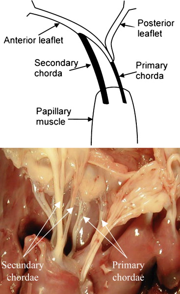 Mitral ring annuloplasty relieves tension of the secondary but not ...