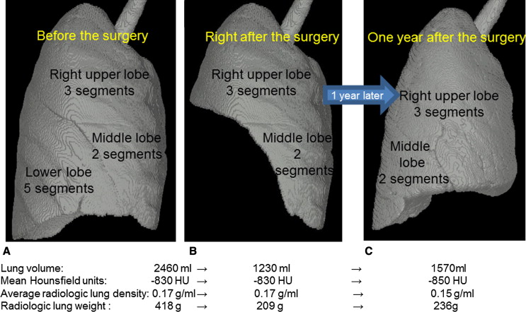 Radiologic Evaluation For Volume And Weight Of Remnant Lung In