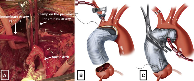 Direct innominate artery cannulation: An alternate technique for ...