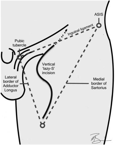 Penile Cancer: Contemporary Lymph Node Management - ScienceDirect