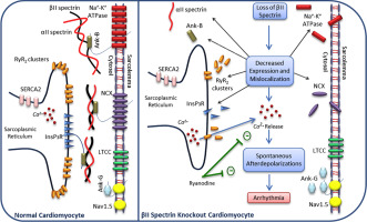 The role of βII spectrin in cardiac health and disease