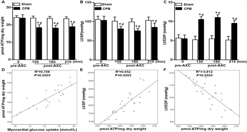 Akt is a critical node of acute myocardial insulin