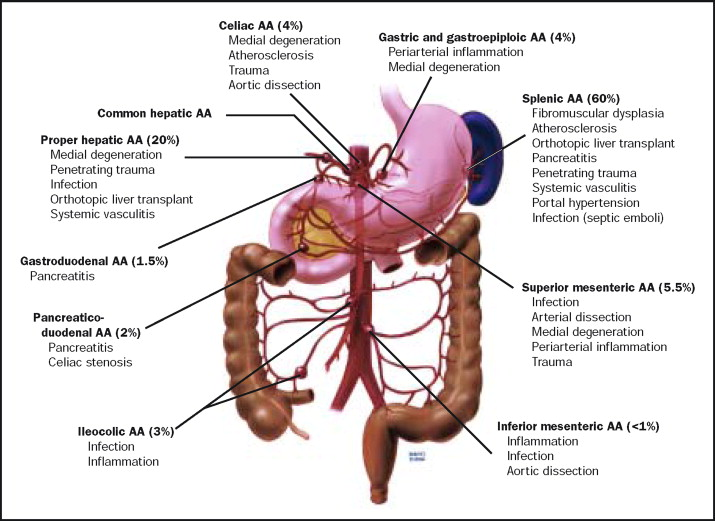 Splanchnic Artery Aneurysms Sciencedirect