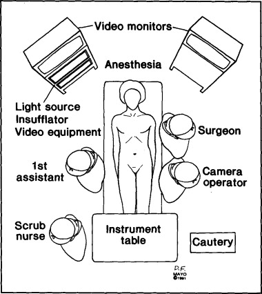 laparoscopic cholecystectomy operative technique sciencedirect Laundry Assistant Resume download full size image