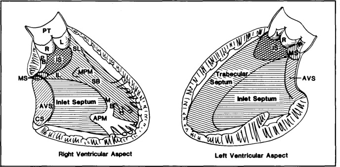 Standardized Nomenclature Of The Ventricular Septum And Ventricular