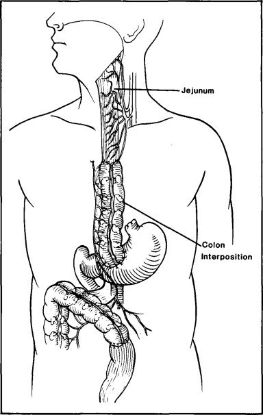 Salvage Of A Failed Colon Interposition In The Esophagus With A Free