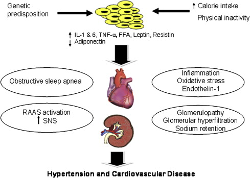 Hypertension In Obesity Sciencedirect