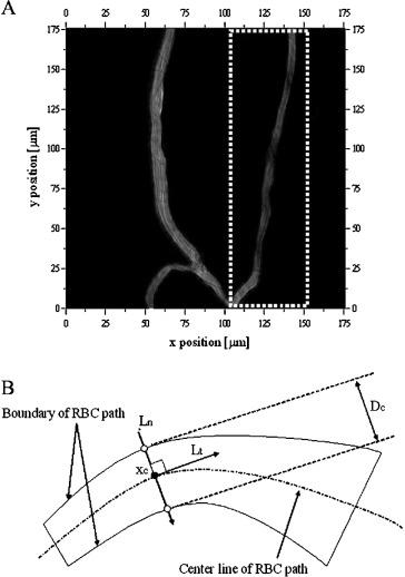 Measurement Of Rbc Deformation And Velocity In Capillaries In Vivo