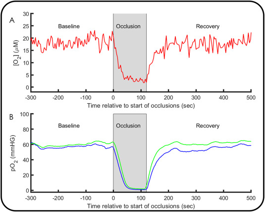 Continuous monitoring of interstitial tissue oxygen using