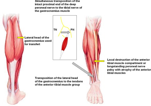 Neurotized lateral gastrocnemius muscle transfer for persistent ...