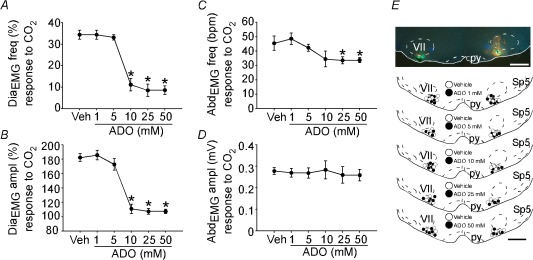 Inhibition of the hypercapnic ventilatory response by