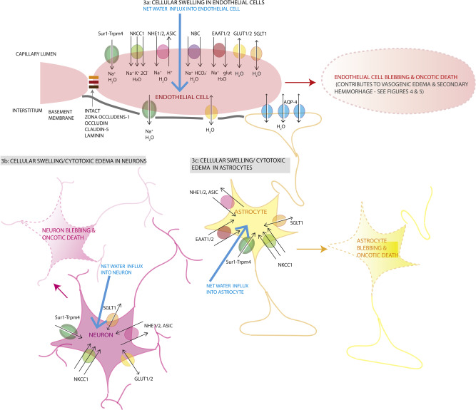 Pathophysiology and treatment of cerebral edema in traumatic