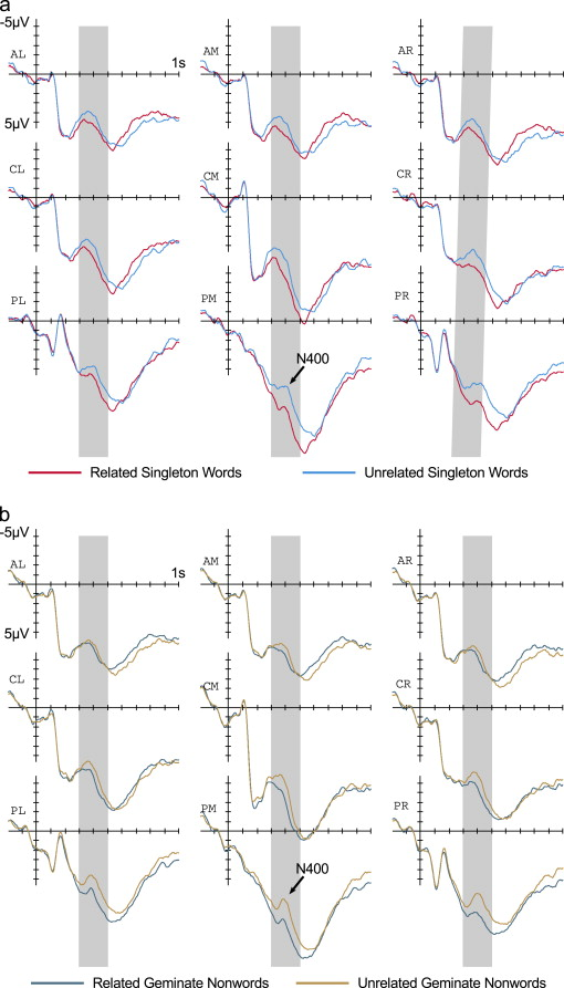 Asymmetric processing of durational differences