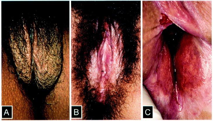 Vulvar disease - ScienceDirect