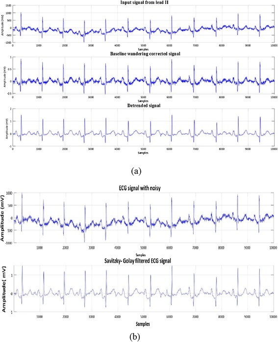 A new technique for ECG signal classification genetic