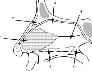 Surgical Management of the Deviated Septum: Techniques in