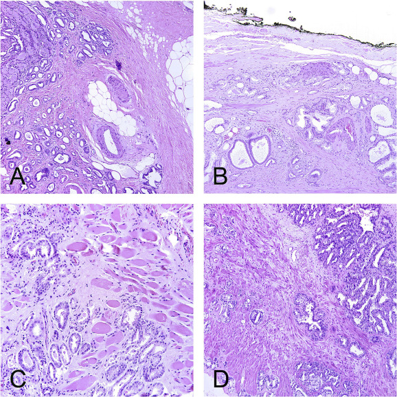 carcinoma della prostata pdf 2017