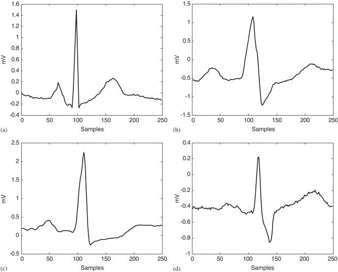 ECG beat classifier designed by combined neural network model