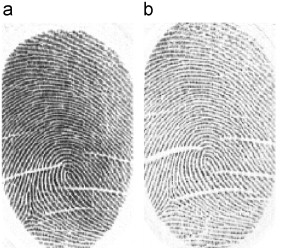 Crease detection from fingerprint images and its applications in elderly  people - ScienceDirect