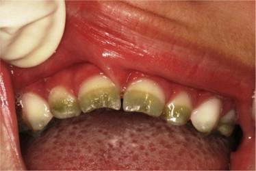Green teeth resulting from neonatal hyperbilirubinemia