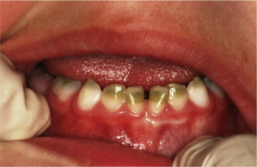 Green Teeth Resulting From Neonatal Hyperbilirubinemia Report Of A
