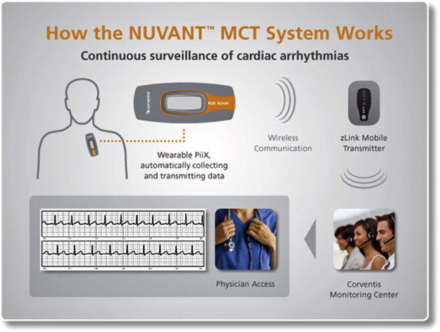 ECG Patch Monitors for Assessment of Cardiac Rhythm Abnormalities
