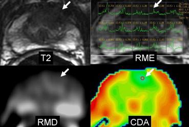 RM resonancia magnética de la próstata un enfoque práctico haciendo videos