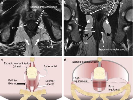 dolor en el ano perineal después de la tubería