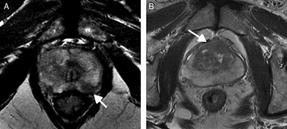 resonancia magnética multiparamétrica de próstata con medio de contraste