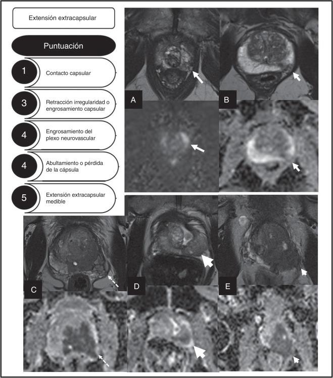 Código de resonancia magnética multiparamétrica de la próstata